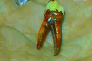 zub vampira